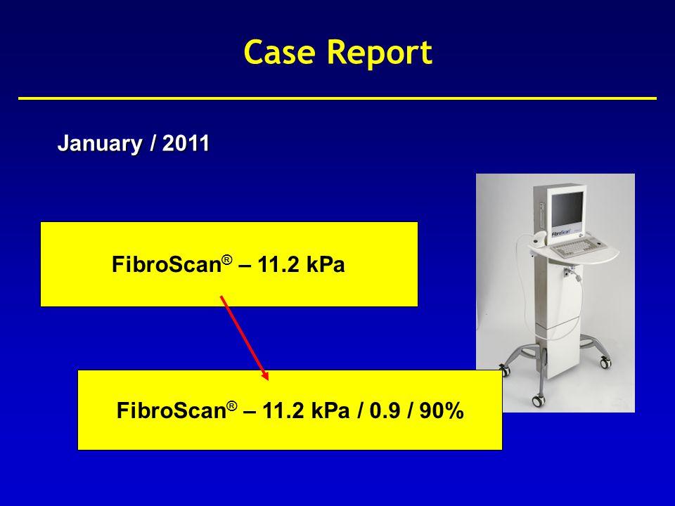 8.89.614.6 FibroScan ® (kPa) Liver Fibrosis (METAVIR) F0-F1 F2 F3 F4 Ziol et al, Hepatology 2005 Case Report