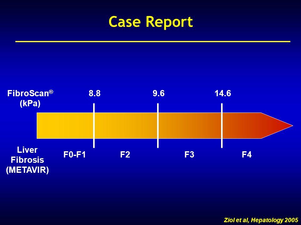 1.FibroScan is correct .1.FibroScan ® is correct .
