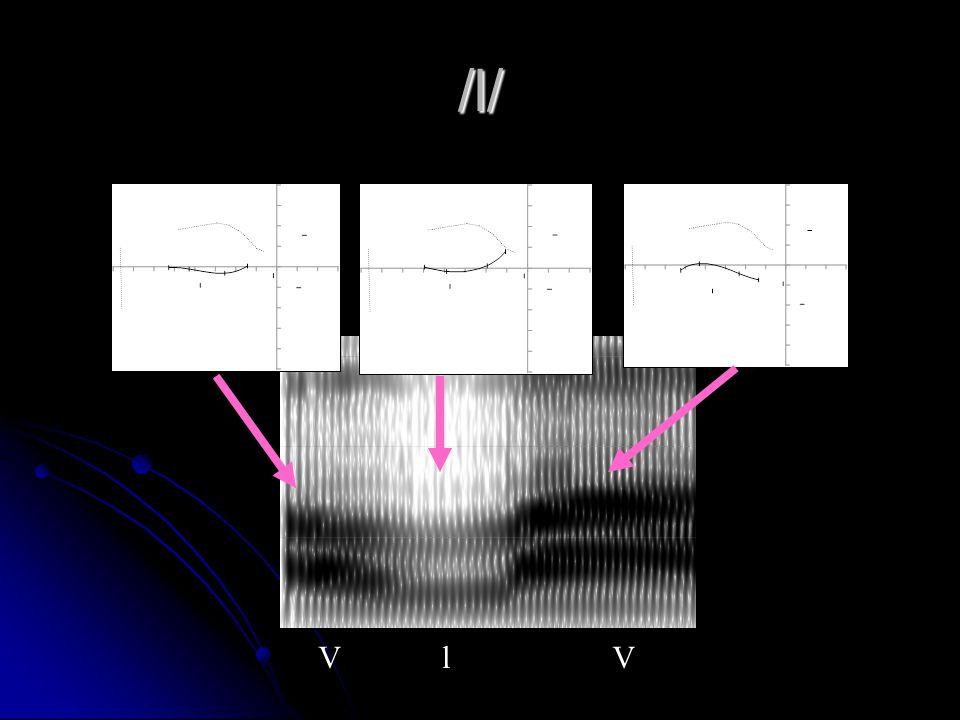 /l/ VlV F1 F2 F3 1000 2000 3000 Freq (Hz)