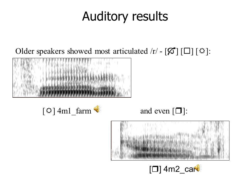 Articulatory dynamics with UTI Scobbie & Sebregts (2005) at MFM  Dutch derhoticisation  Covert /r/ reflex oeasier to see, harder to hear olate, devoiced, weakened, coarticulated Scottish pilot speaker also has visible but not so audible anterior lingual constrictions
