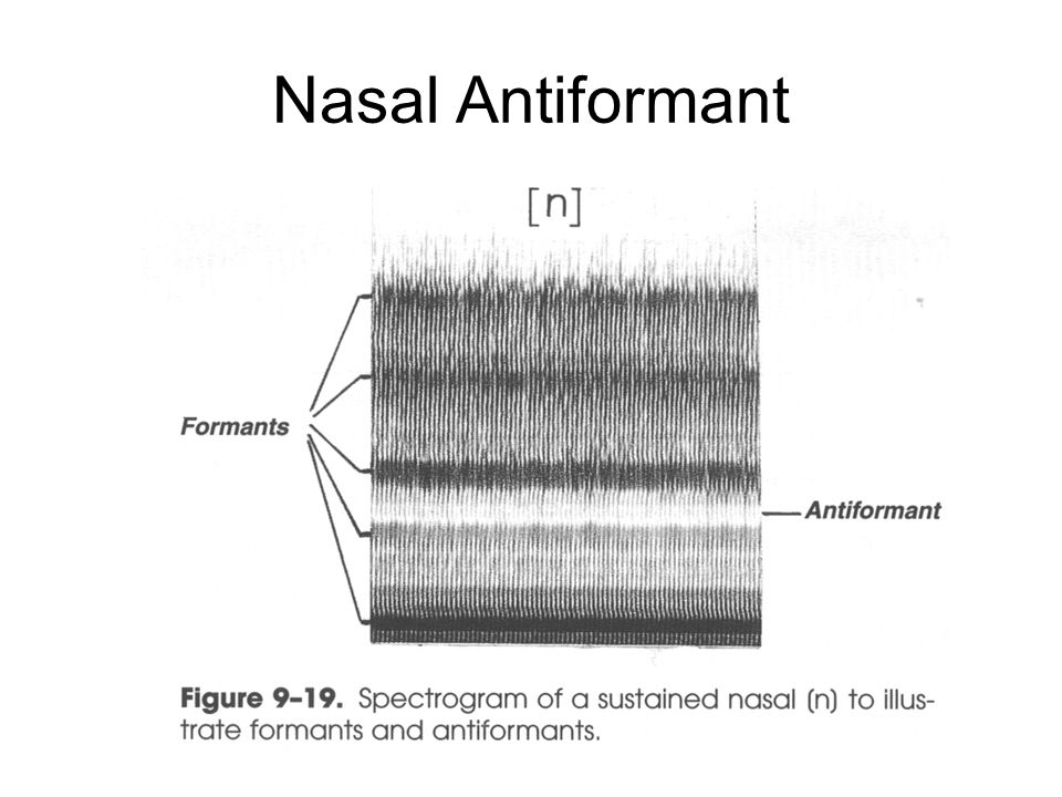 Nasal Antiformant