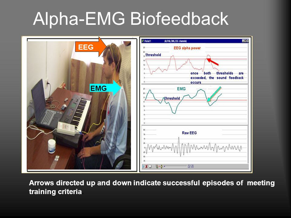 Alpha-EMG Biofeedback Arrows directed up and down indicate successful episodes of meeting training criteria.