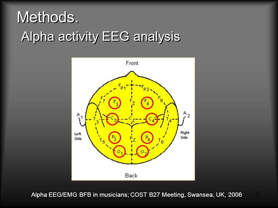 Alpha EEG/EMG BFB in musicians; COST B27 Meeting, Swansea, UK, 2006 21 Methods.