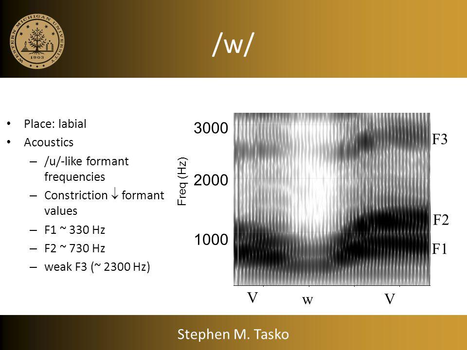 Point parameterized representation Retroflexed Stephen M. Tasko
