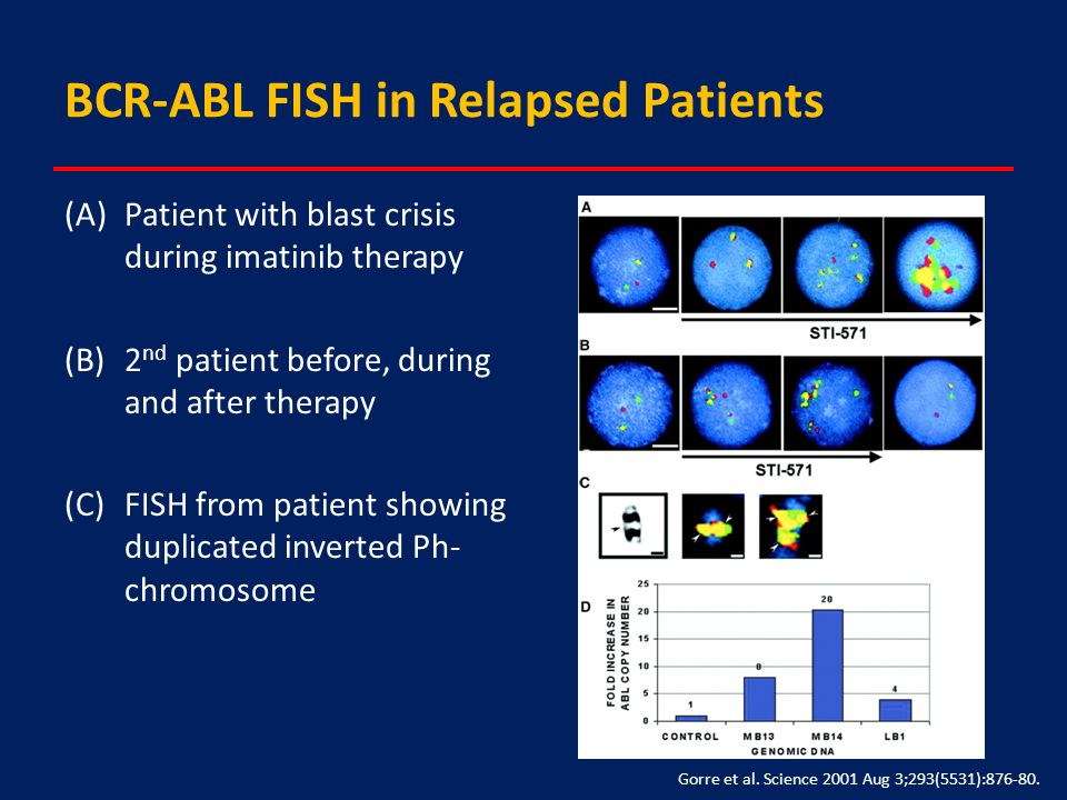 BCR-ABL FISH in Relapsed Patients (A)Patient with blast crisis during imatinib therapy (B)2 nd patient before, during and after therapy (C)FISH from patient showing duplicated inverted Ph- chromosome Gorre et al.