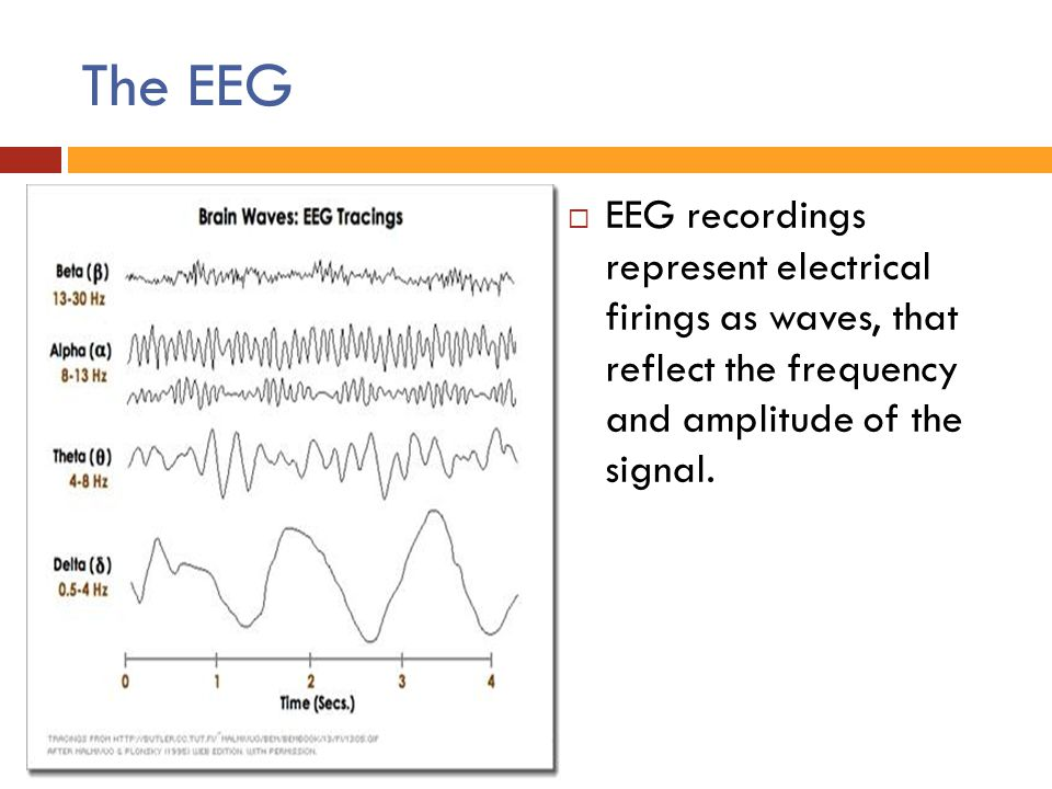 The EEG  EEG recordings represent electrical firings as waves, that reflect the frequency and amplitude of the signal.