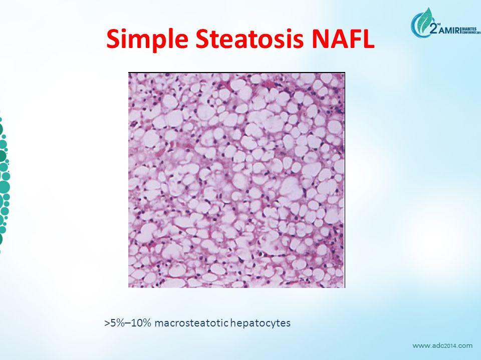 Simple Steatosis NAFL >5%–10% macrosteatotic hepatocytes