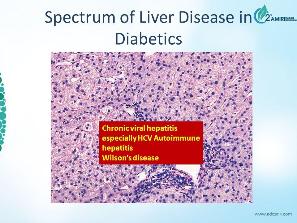 Spectrum of Liver Disease in Diabetics Chronic viral hepatitis especially HCV Autoimmune hepatitis Wilson's disease