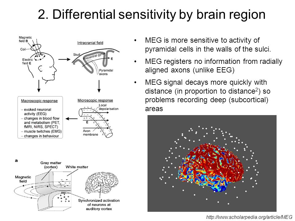 MEG is more sensitive to activity of pyramidal cells in the walls of the sulci. MEG registers no information from radially aligned axons (unlike EEG)