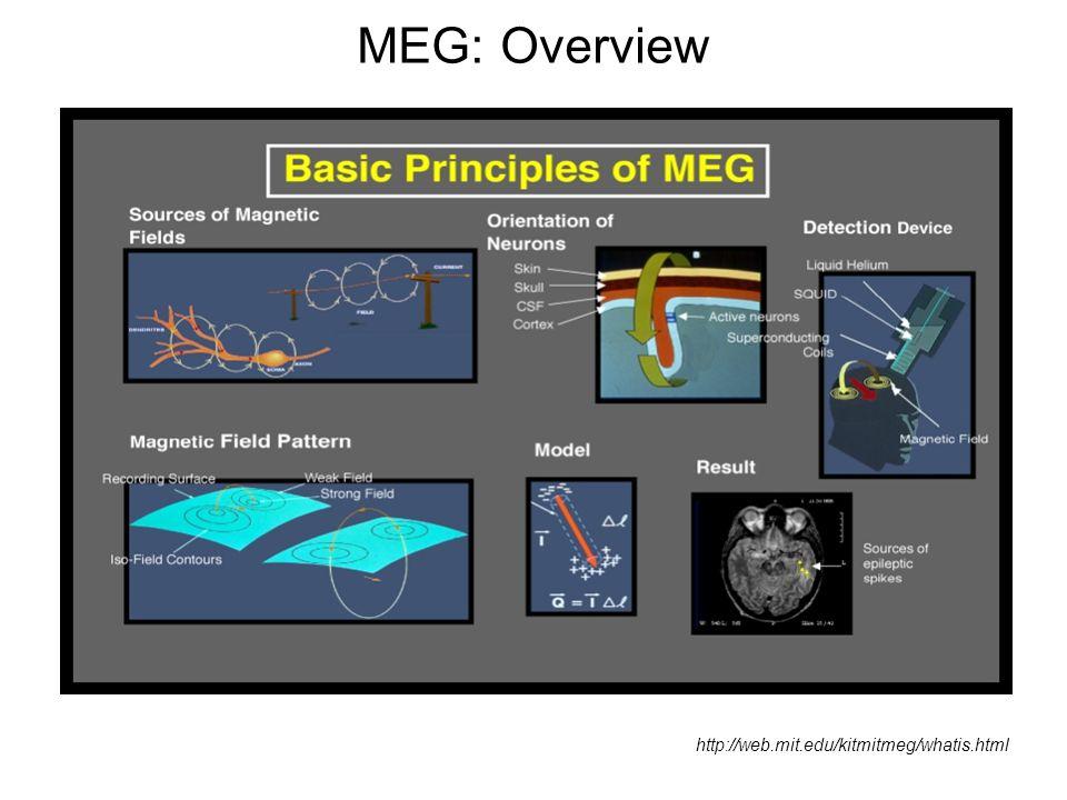 MEG: Overview http://web.mit.edu/kitmitmeg/whatis.html