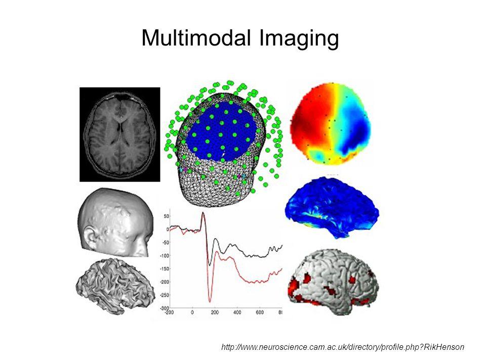 Multimodal Imaging http://www.neuroscience.cam.ac.uk/directory/profile.php?RikHenson