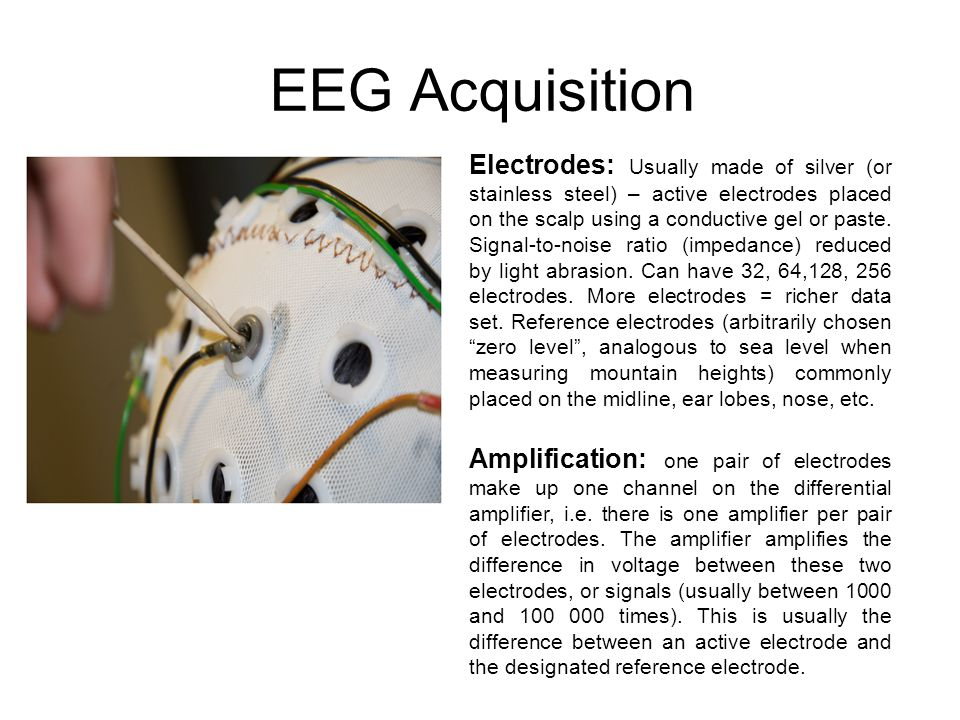 EEG Acquisition Electrodes: Usually made of silver (or stainless steel) – active electrodes placed on the scalp using a conductive gel or paste.