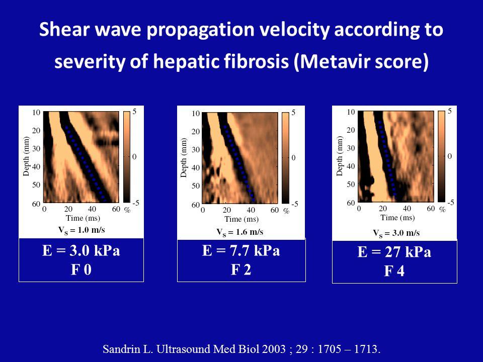 Shear wave propagation velocity according to severity of hepatic fibrosis (Metavir score) Sandrin L.