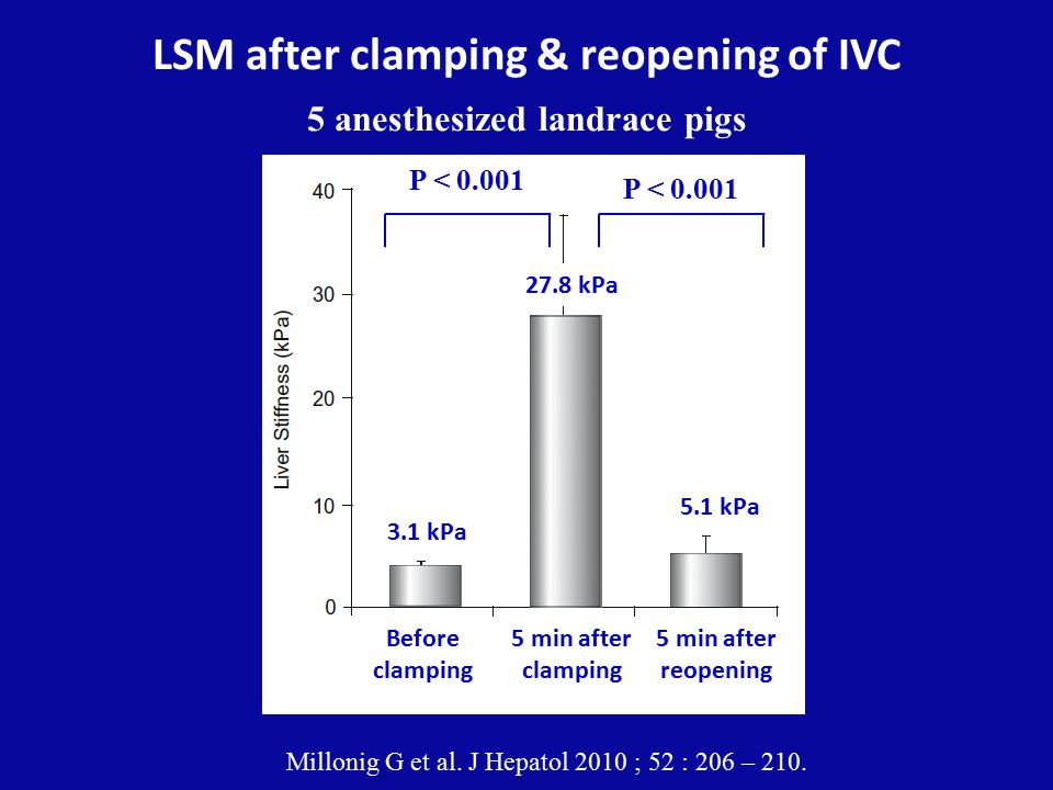 LSM after clamping & reopening of IVC 5 anesthesized landrace pigs Millonig G et al. J Hepatol 2010 ; 52 : 206 – 210. P < 0.001 Before clamping 3.1 kP