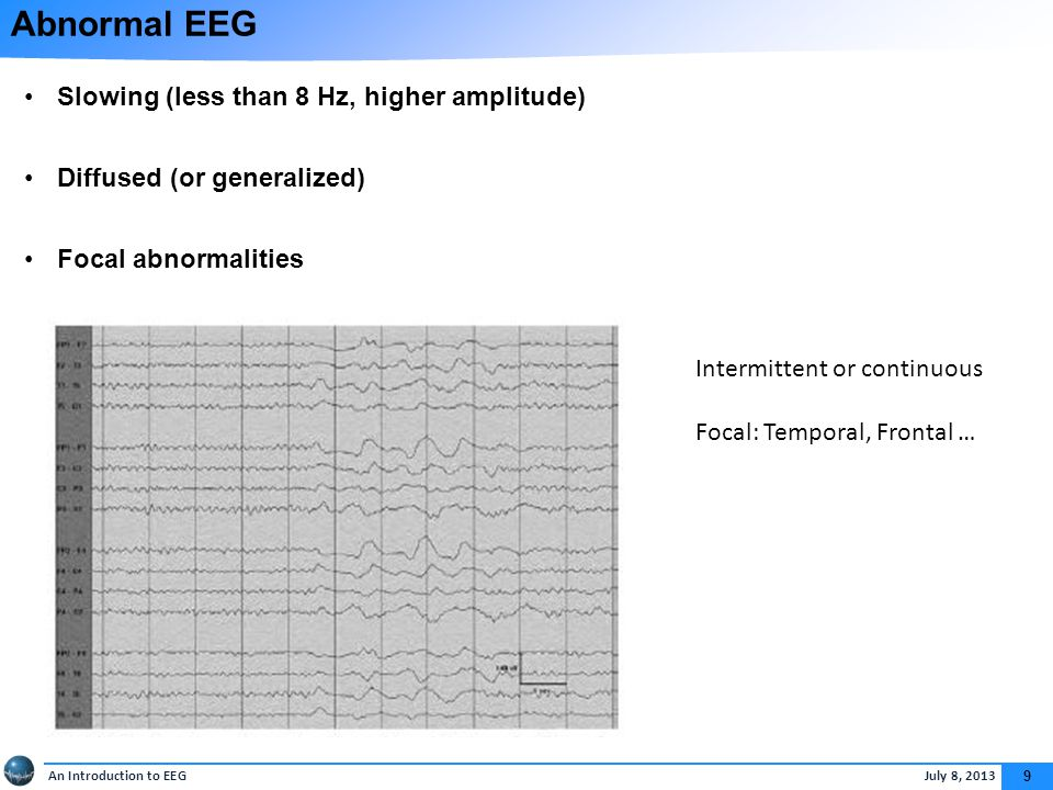 An Introduction to EEG July 8, 2013 9 Abnormal EEG Slowing (less than 8 Hz, higher amplitude) Diffused (or generalized) Focal abnormalities Intermittent or continuous Focal: Temporal, Frontal …