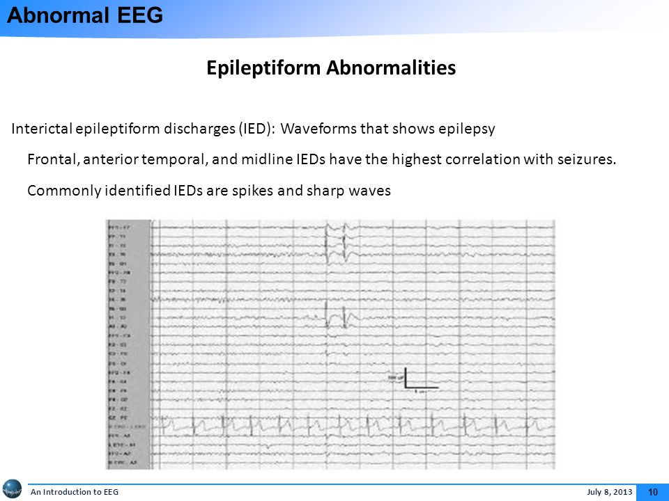 An Introduction to EEG July 8, 2013 10 Abnormal EEG Epileptiform Abnormalities Interictal epileptiform discharges (IED): Waveforms that shows epilepsy Frontal, anterior temporal, and midline IEDs have the highest correlation with seizures.
