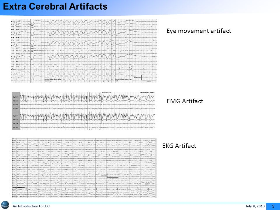 An Introduction to EEG July 8, 2013 5 Extra Cerebral Artifacts EKG Artifact Eye movement artifact EMG Artifact