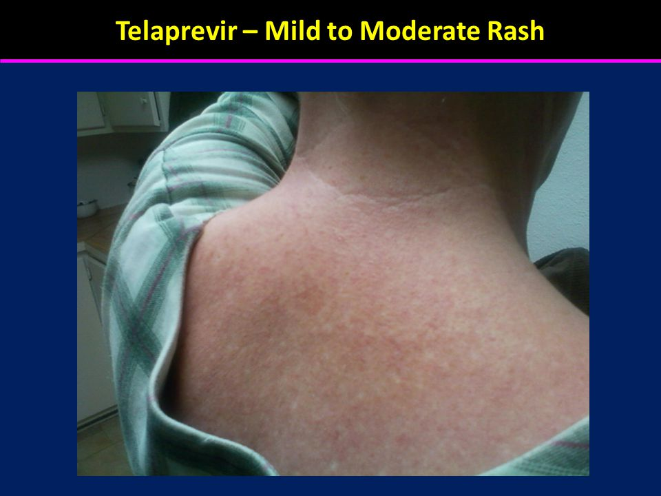 Telaprevir – Mild to Moderate Rash
