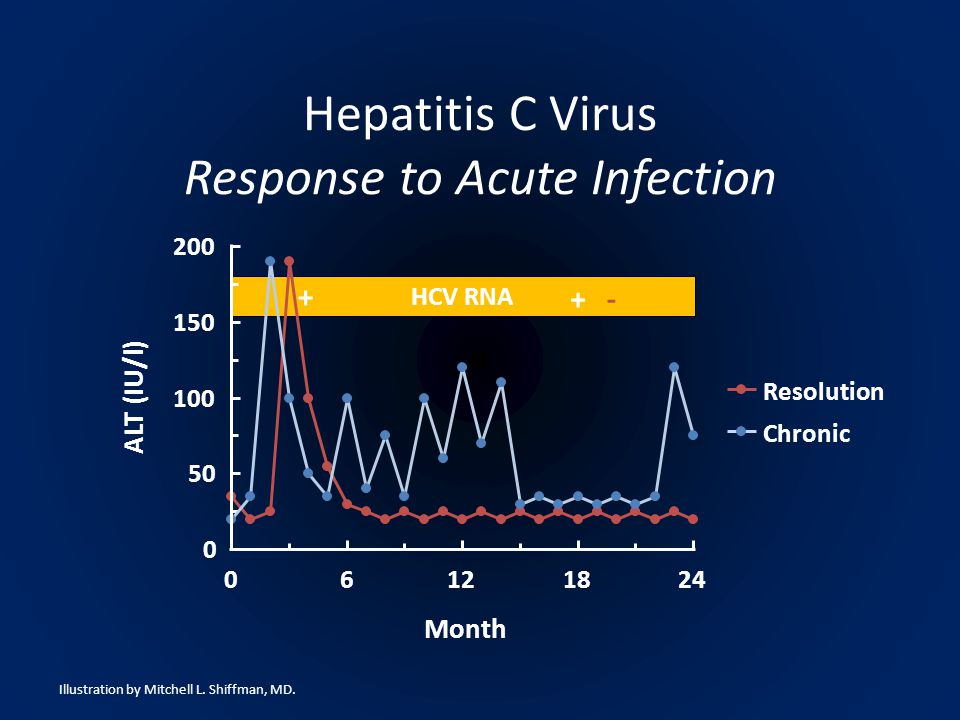 HCV RNA 0 50 100 150 200 06121824 Month ALT (IU/l) Resolution Chronic + +- Hepatitis C Virus Response to Acute Infection Illustration by Mitchell L.