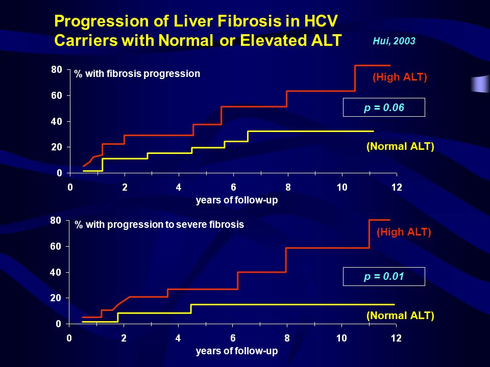 Progression of Liver Fibrosis in HCV Carriers with Normal or Elevated ALT % with fibrosis progression % with progression to severe fibrosis years of follow-up (High ALT) (Normal ALT) p = 0.06 p = 0.01 Hui, 2003