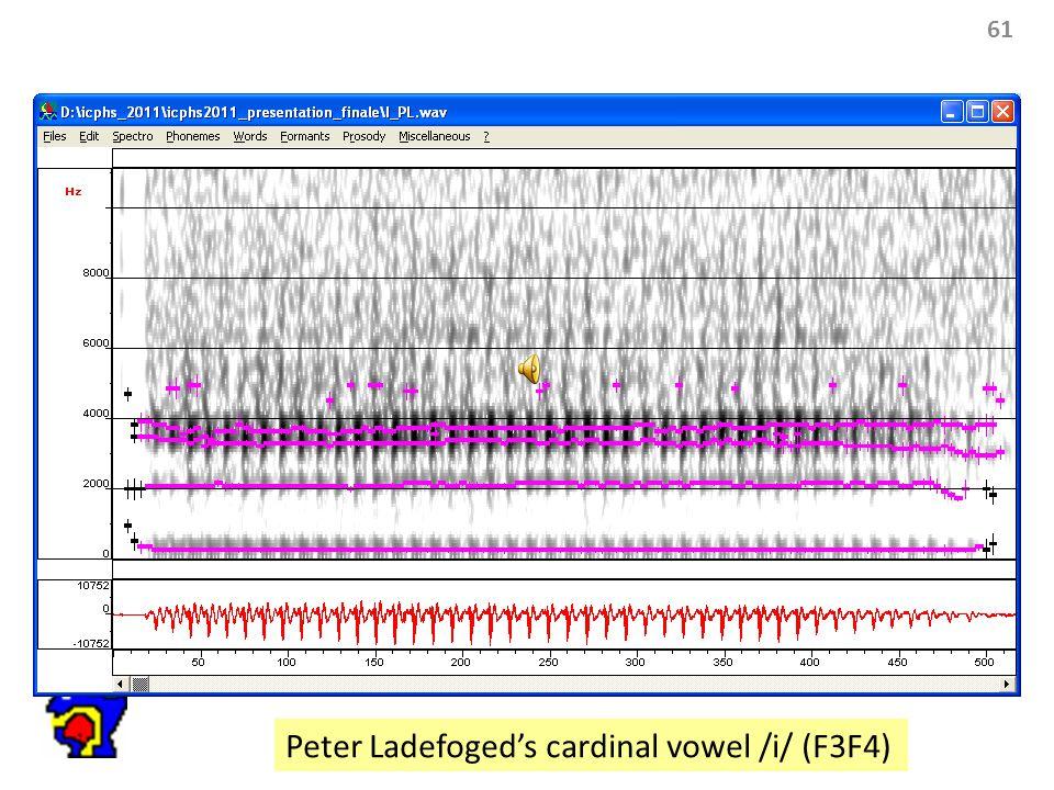 61 Peter Ladefoged's cardinal vowel /i/ (F3F4)