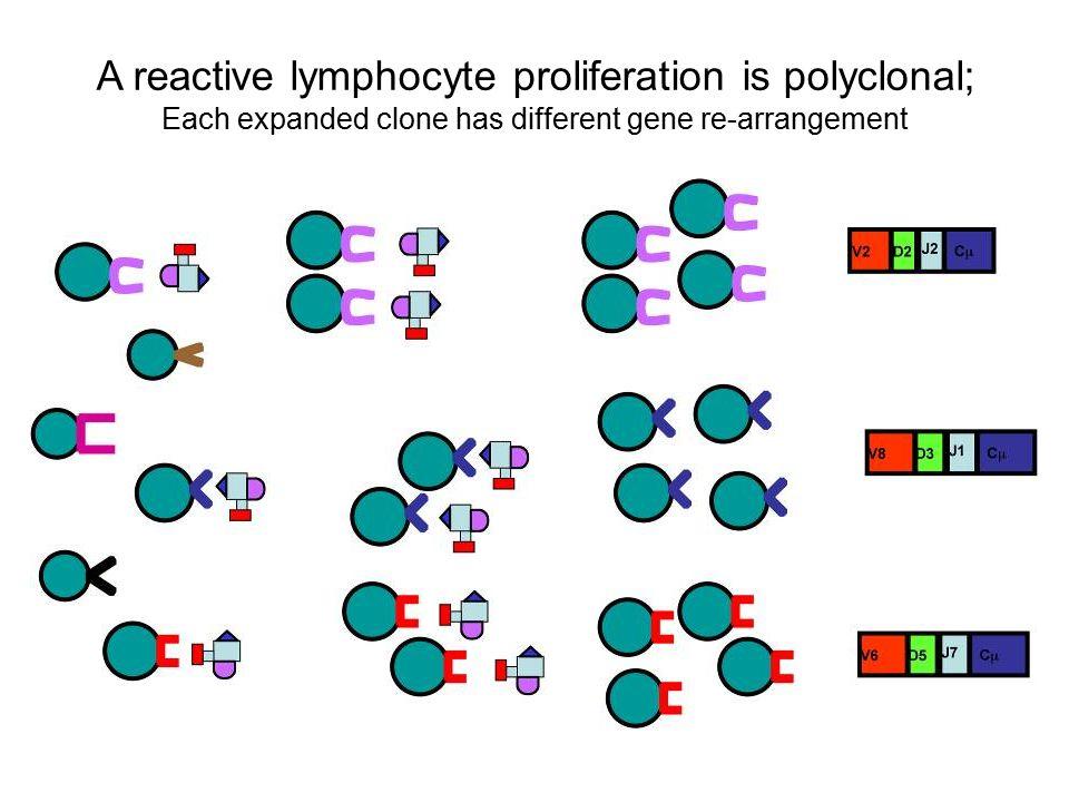 A reactive lymphocyte proliferation is polyclonal; Each expanded clone has different gene re-arrangement