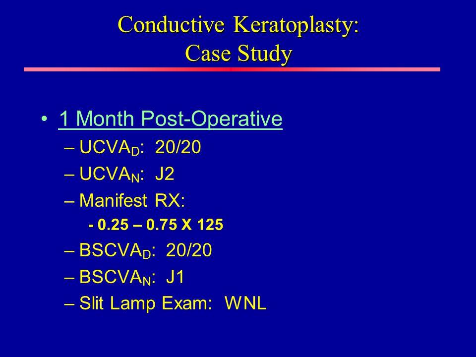 1 Month Post-Operative –UCVA D : 20/20 –UCVA N : J2 –Manifest RX: - 0.25 – 0.75 X 125 –BSCVA D : 20/20 –BSCVA N : J1 –Slit Lamp Exam: WNL Conductive Keratoplasty: Case Study