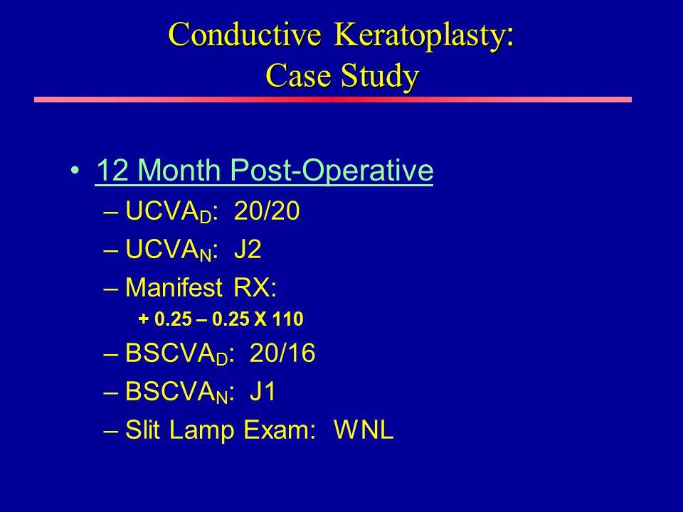 12 Month Post-Operative –UCVA D : 20/20 –UCVA N : J2 –Manifest RX: + 0.25 – 0.25 X 110 –BSCVA D : 20/16 –BSCVA N : J1 –Slit Lamp Exam: WNL Conductive Keratoplasty : Case Study