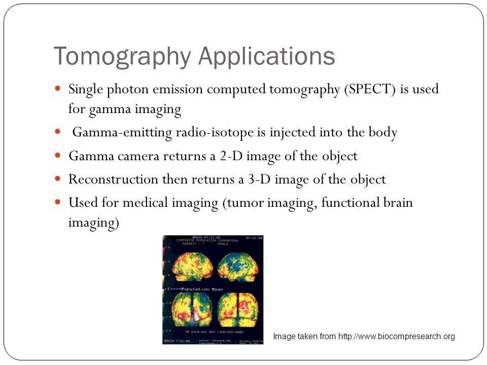 Tomography Applications Single photon emission computed tomography (SPECT) is used for gamma imaging Gamma-emitting radio-isotope is injected into the body Gamma camera returns a 2-D image of the object Reconstruction then returns a 3-D image of the object Used for medical imaging (tumor imaging, functional brain imaging) Image taken from http://www.biocompresearch.org