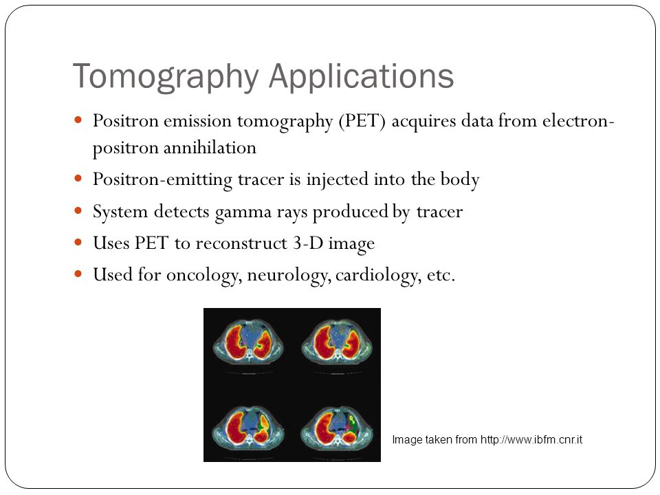 Tomography Applications Positron emission tomography (PET) acquires data from electron- positron annihilation Positron-emitting tracer is injected into the body System detects gamma rays produced by tracer Uses PET to reconstruct 3-D image Used for oncology, neurology, cardiology, etc.