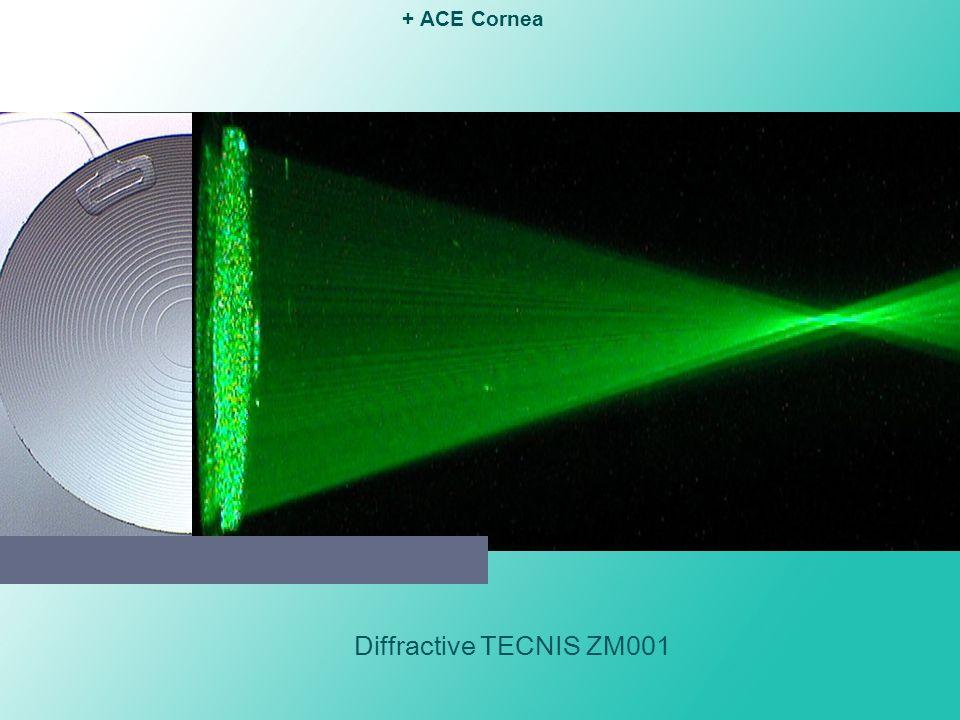 Diffractive TECNIS ZM001 + ACE Cornea near focusfar focus