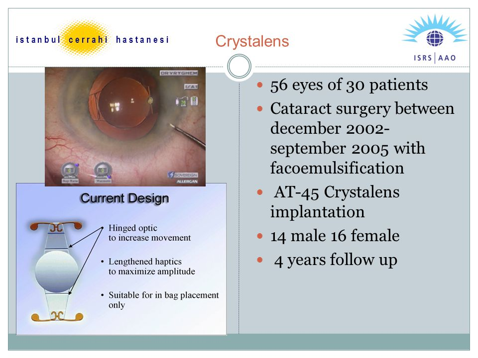 Review: multifocal IOLs Retrospective analysis of 124 patients( 223 eyes) Surgeries from October 05 –May 07 Postop expected bcva 20/40 or over (can be measured by potential acuity meter) with No anterior segment or retinal pathology Small incision facoemulsification Monoculer,binoculer implantation Mix-match i s t a n b u l c e r r a h i h a s t a n e s i