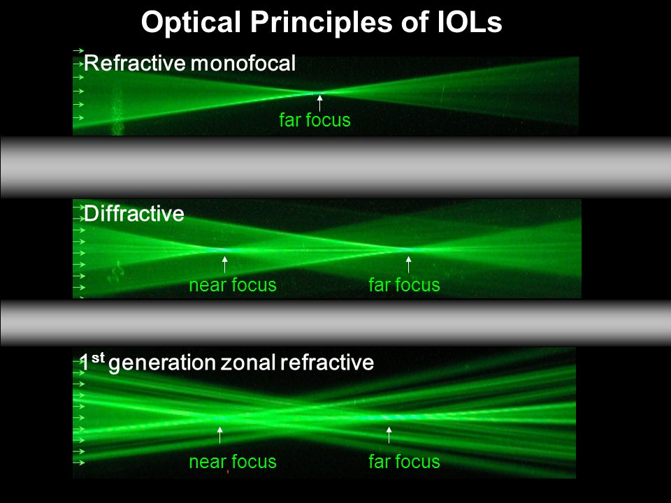 Diffractive 1 st generation zonal refractive far focusnear focus Refractive monofocal far focus Optical Principles of IOLs near focusfar focus