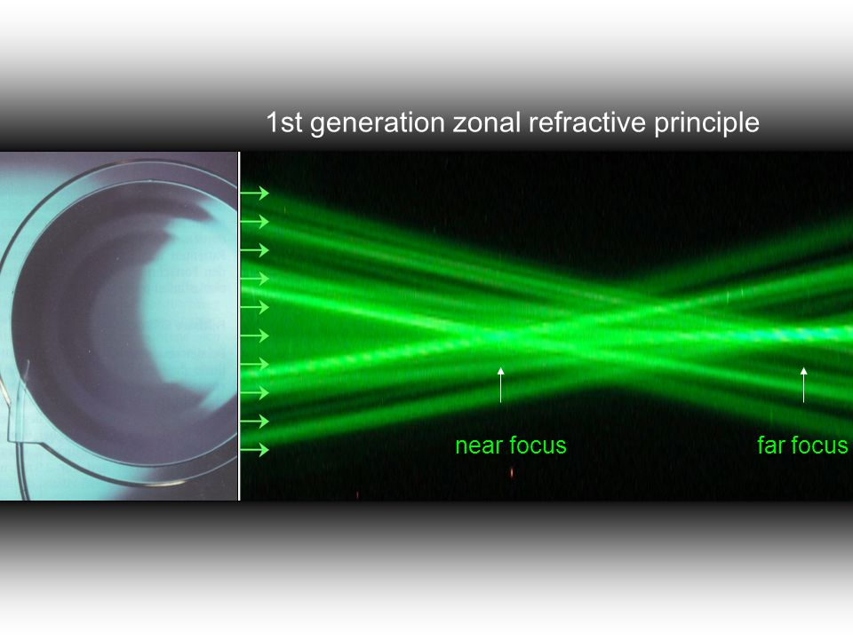 Tecnis IOL Diffractive posterior surface with 32 concentric rings Light distribution of 50 % for distance vision, 50% for near vision add +4:0 D Tecnis:distribution of focus is independent of pupil size 5-34 D Silicon A-constant 119 i s t a n b u l c e r r a h i h a s t a n e s i