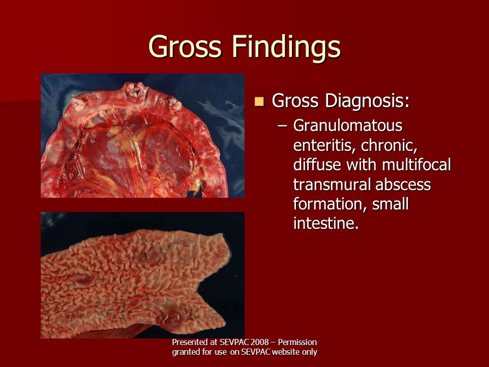 Gross Findings Gross Diagnosis: Gross Diagnosis: –Granulomatous enteritis, chronic, diffuse with multifocal transmural abscess formation, small intestine.