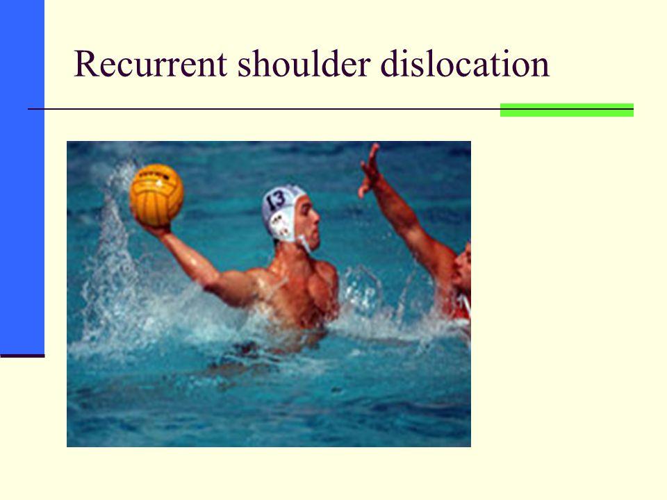 Recurrent shoulder dislocation