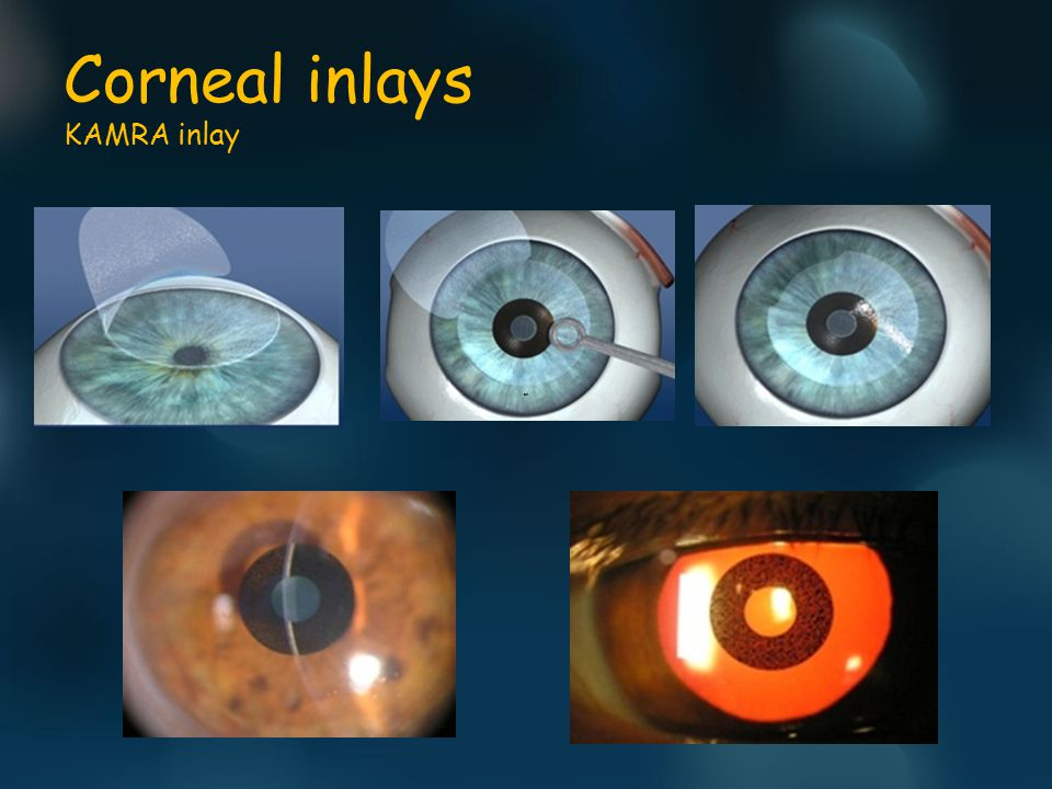 Corneal inlays KAMRA inlay