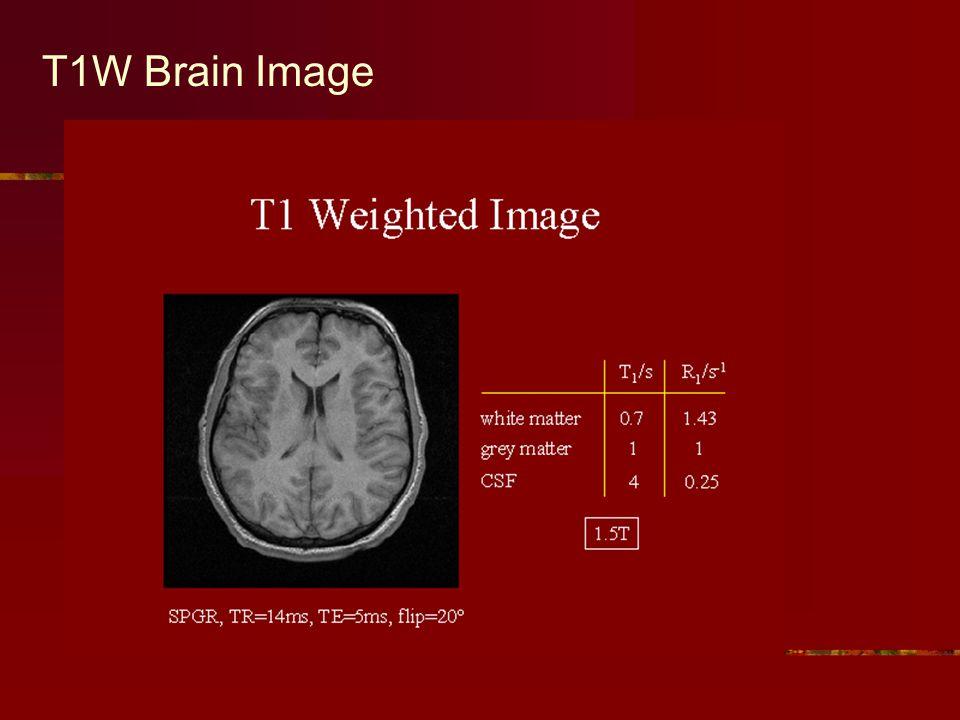 T1W Brain Image