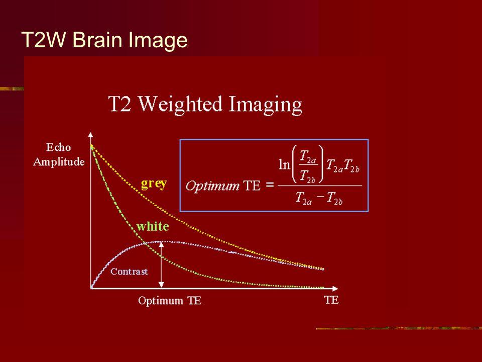 T2W Brain Image