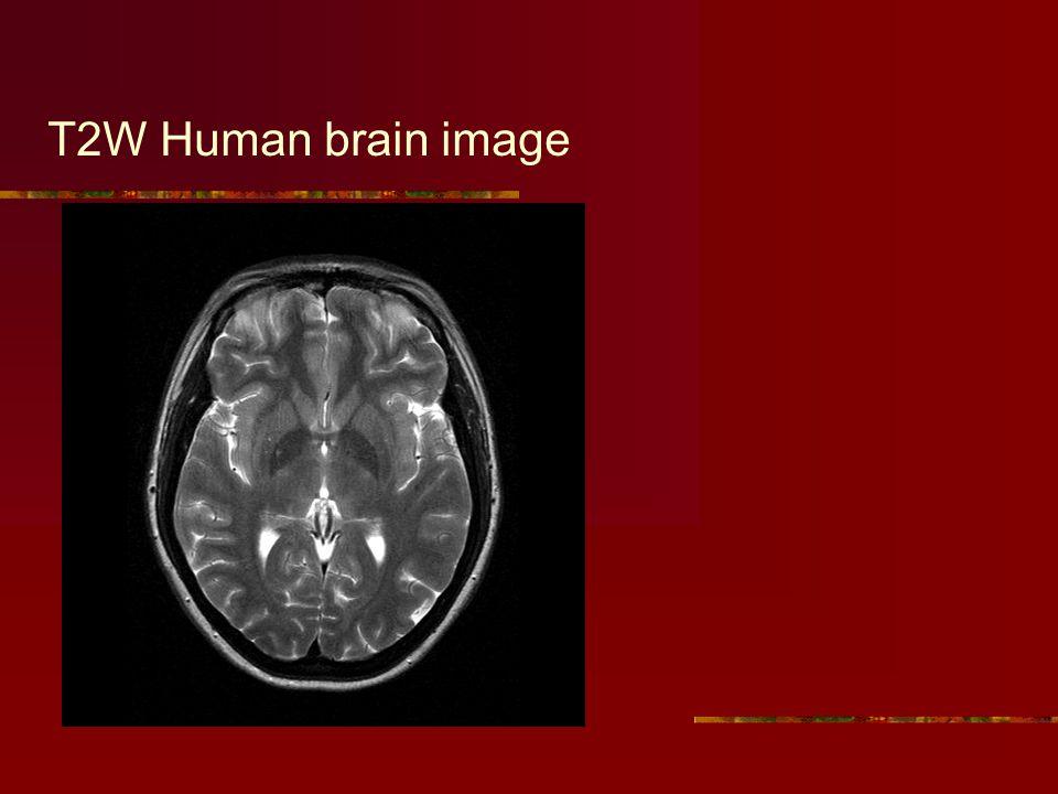 T2W Human brain image