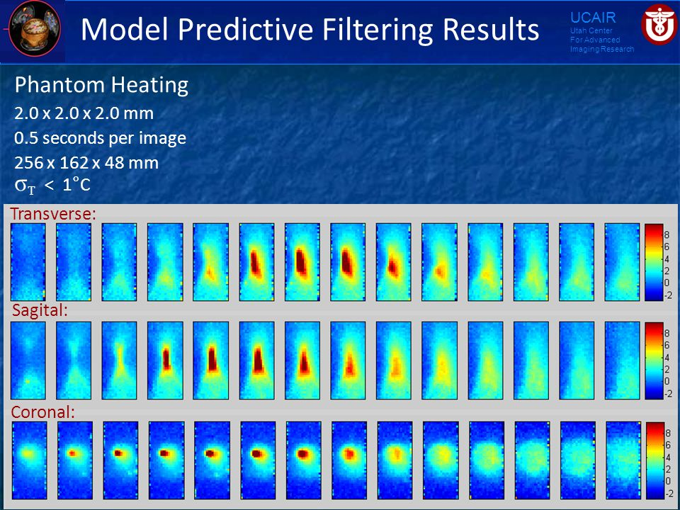 UCAIR Utah Center For Advanced Imaging Research Model Predictive Filtering Results Phantom Heating 2.0 x 2.0 x 2.0 mm 0.5 seconds per image 256 x 162