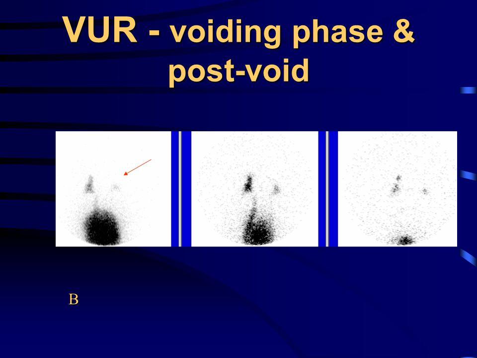 VUR - voiding phase & post-void B