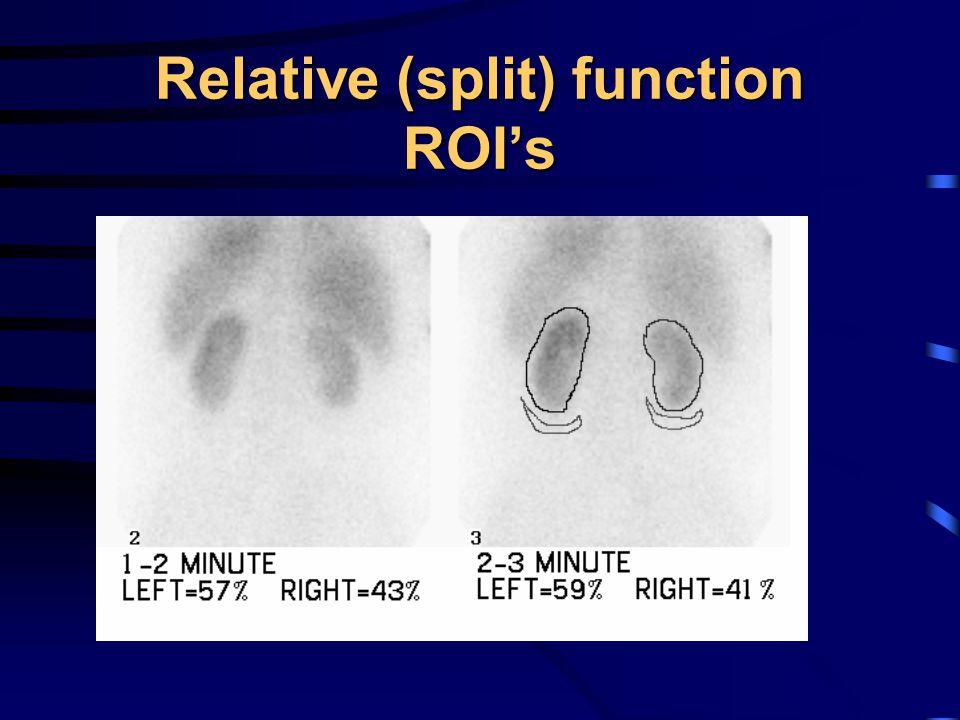 Relative (split) function ROI's