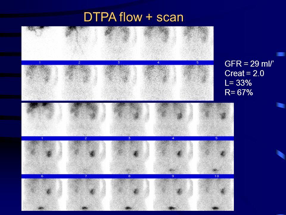 DTPA flow + scan GFR = 29 ml/' Creat = 2.0 L= 33% R= 67%