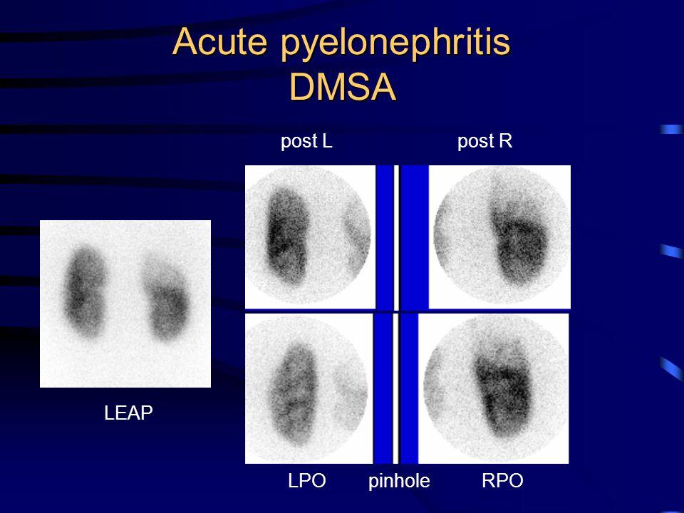 Acute pyelonephritis DMSA post L LPO pinhole post R RPO LEAP