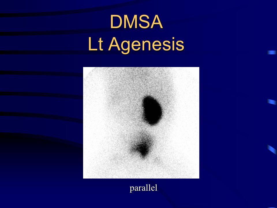 DMSA Lt Agenesis parallel