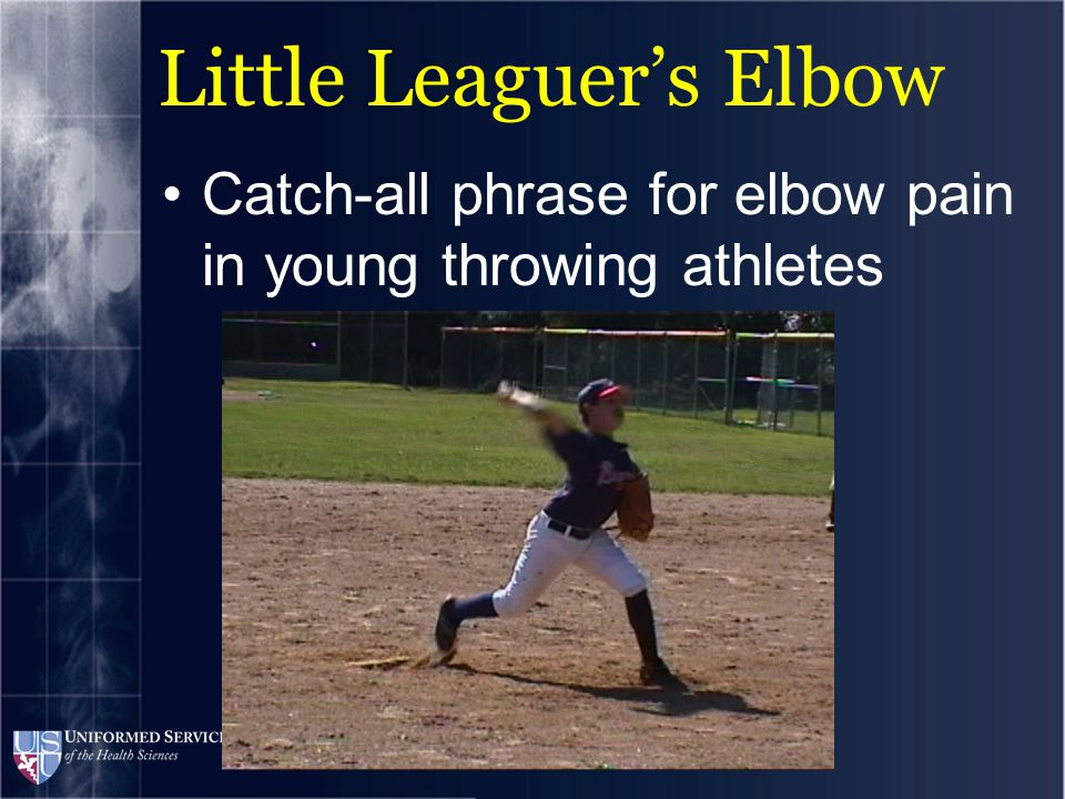 Little Leaguer's Elbow Catch-all phrase for elbow pain in young throwing athletes