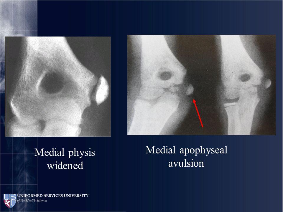 Medial physis widened Medial apophyseal avulsion