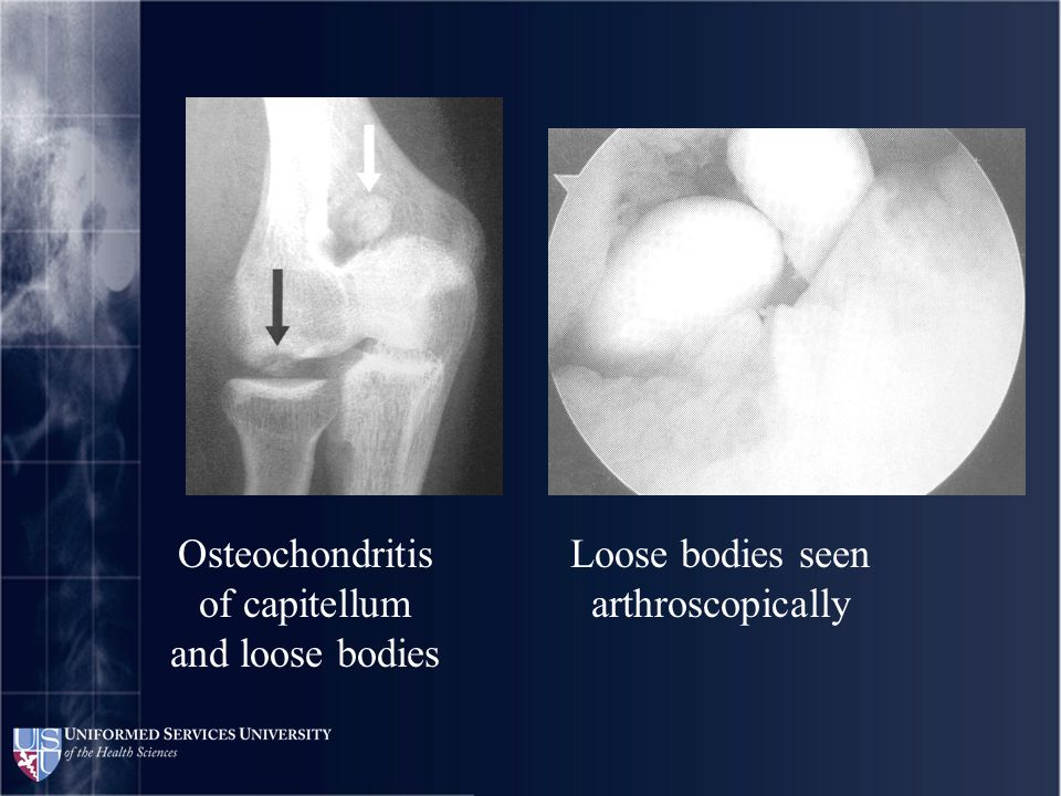 Osteochondritis of capitellum and loose bodies Loose bodies seen arthroscopically