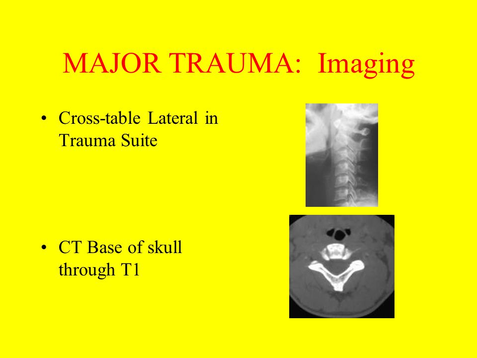 MAJOR TRAUMA: Imaging Cross-table Lateral in Trauma Suite CT Base of skull through T1